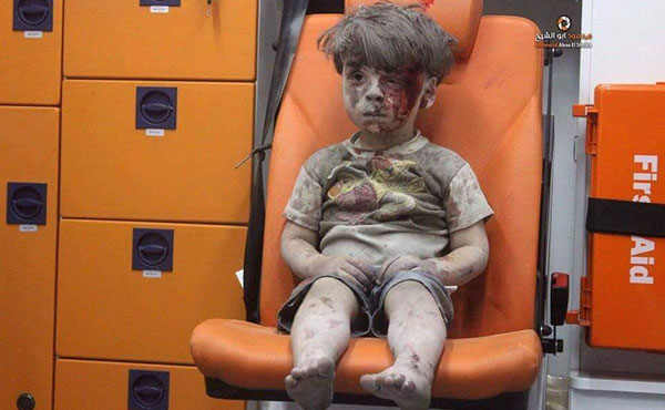 Omran Daqneesh, the five years old syrian boy wounded in Aleppo by russian bombardements.
