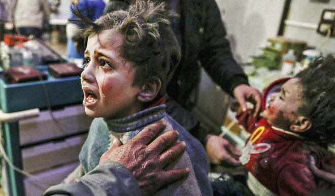 Dos niños son atendidos tras el ataque de Asad Siria
